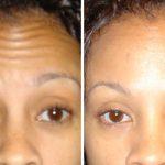 Botox by Dr. Dave David
