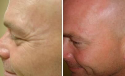 Boston Botox/Dysport | Medical Face & Body Aesthetics